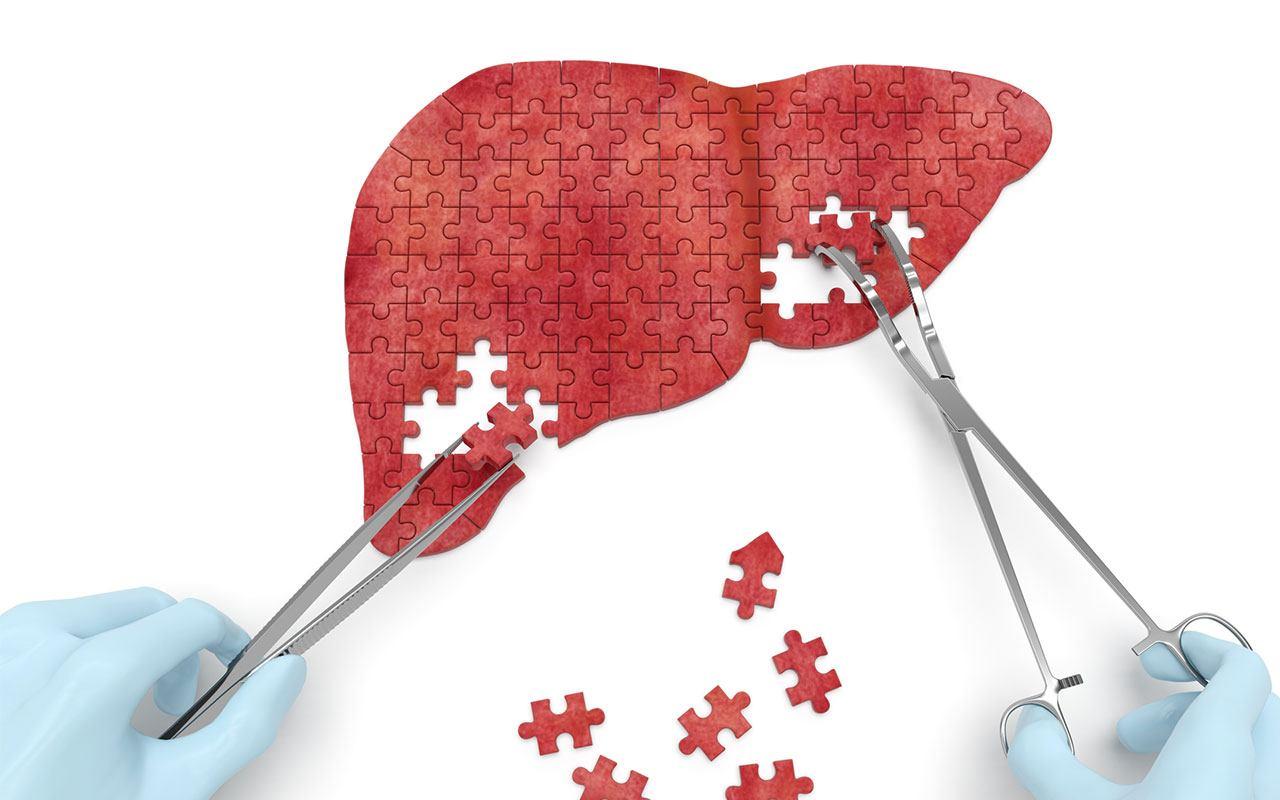 liver-case