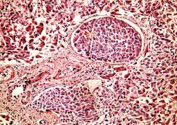 hepatocellular_carcinoma_ilc-2020